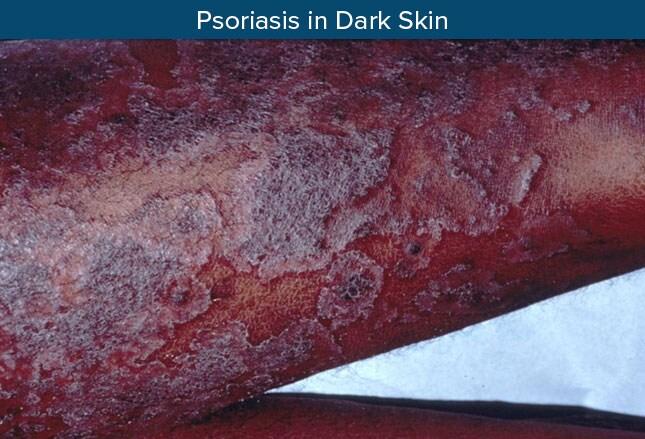 Inverse psoriasis penile