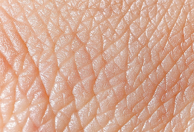 Diagnosing and Treating Rheumatic Skin Disorders