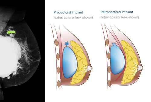 Breast cancer swelling and rupture