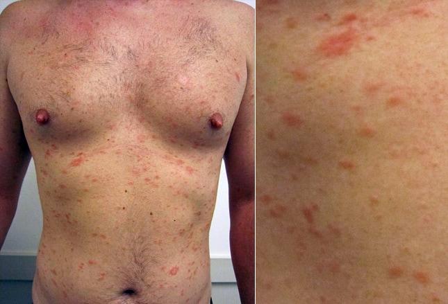 Cause Of Whole Body Skin Rash - rocketswag.com