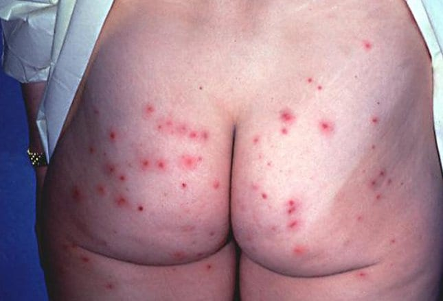 Rash on torso - About Skin Rash