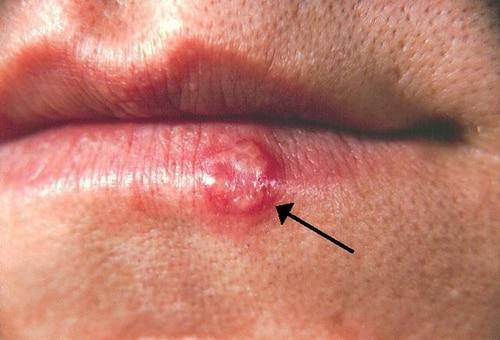 14 rashes you need to know: common dermatologic diagnoses, Skeleton