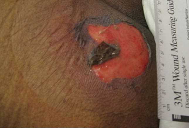 pressure ulcers Also known as pressure ulcers and pressure sores, bed sores can happen when  there is friction or unrelieved pressure on one part of the body.