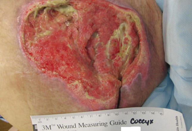 classifying pressure ulcers: 15 cases to test your skills, Skeleton