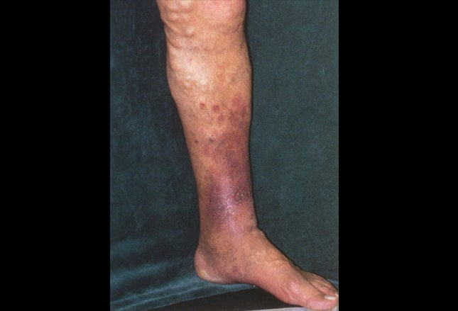 venous insufficiency pictures #11