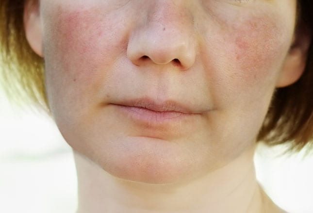Behind that lupus facial butterfly rash images eyes made