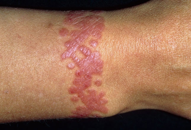 how to know if you are having allergic reaction