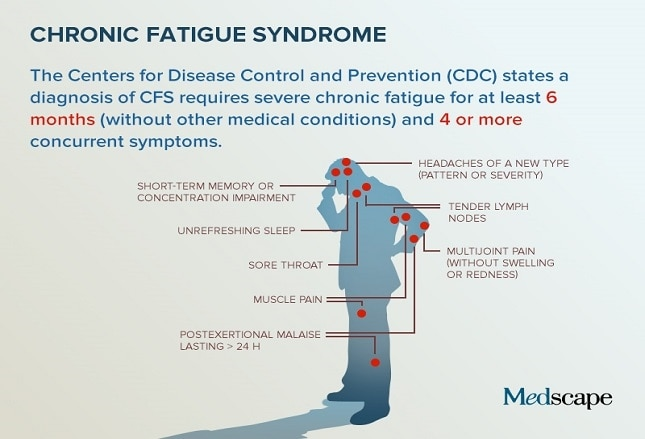 an overview of the condition chronic fatigue syndrome