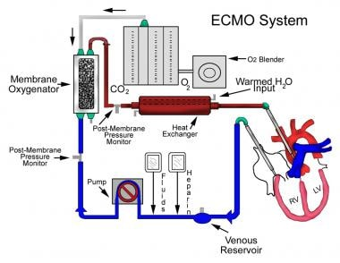 ecmo machine cost per day