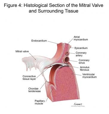 Histological section of the mitral valve and surro