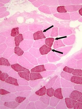 Normal muscle. Immunohistochemical fiber-typing st