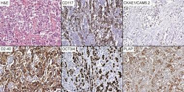 Dysgerminoma immunohistochemistry (x200). CD117 =