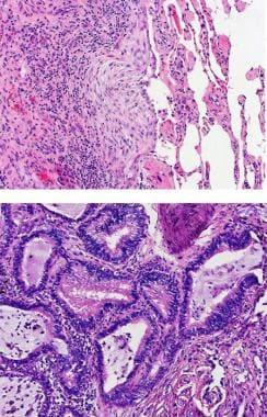 A) Fibroblastic focus (x200) and B) honeycomb chan