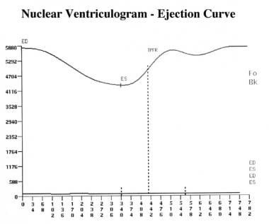 Left ventricular time-activity curve, with end dia