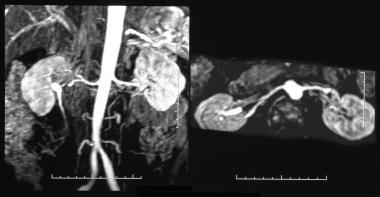 Renal artery stenosis/renovascular hypertension. D