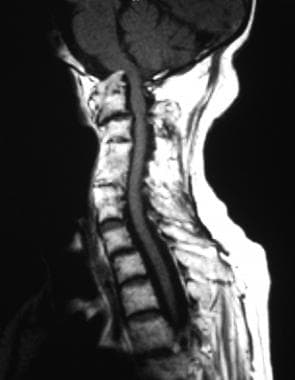 T1-weighted sagittal MRI of the cervical spine sho