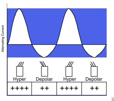 An illustration of the degrees of depolarization a