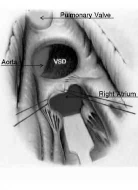 View of ventricular septal defect just underlying