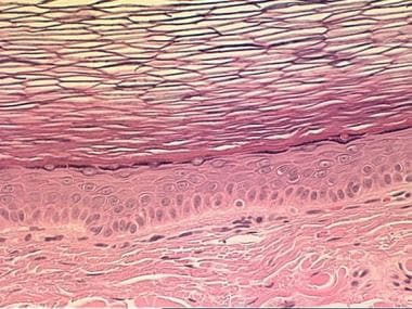 Higher-magnification view of the cyst wall of the