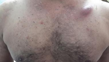 Acneiform lesions in a patient with Behçet disease