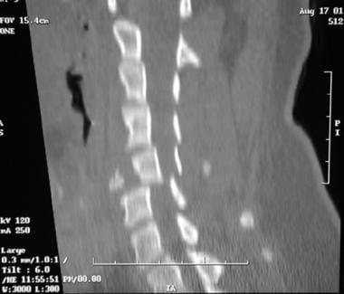 Sagittal CT scan of C5 burst fracture.