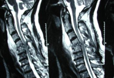 Spinal infections. T2-weighted MRI of Patient A. E