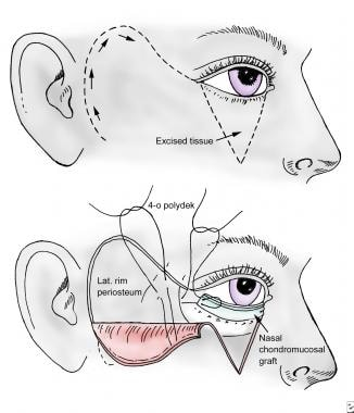 Mustarde rotational cheek flap.