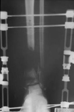 Clinical Case 2. Preoperative radiograph of the tr