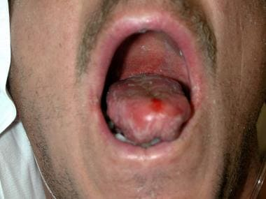 A 46-year-old man presented with nonnecrotizing ce