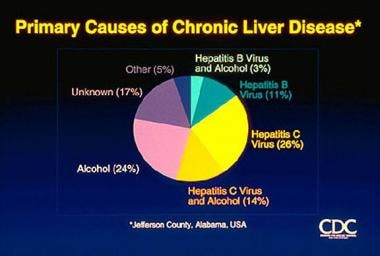 Hepatitis C. Causes of chronic liver disease. Cour