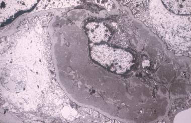 Electron microscopy showing large dark mesangial d