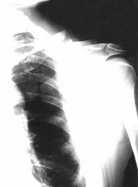 Clavicle fracture with rib fractures. Remember to