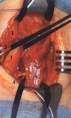 Surgical view of sternomastoid fibrosis shows the