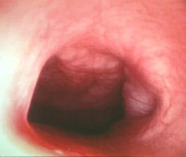 A rigid rhinoscopy photograph of the the nasal cav