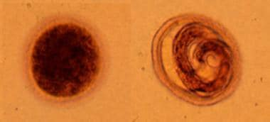 Toxocara canis eggs are passed in dog feces, espe