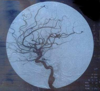 Early phase of the post-fistula coiling angiogram