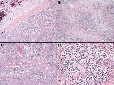 Dysgerminoma and gonadoblastoma histology. A: Dysg