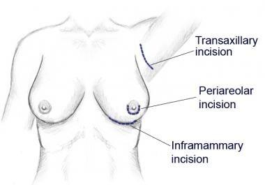 Periareolar, inframammary, and transaxillary appro