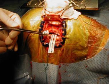 Incision of dura mater, adjacent to sagittal sinus