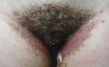 Benign vulvar lesions. Hailey-Hailey disease.