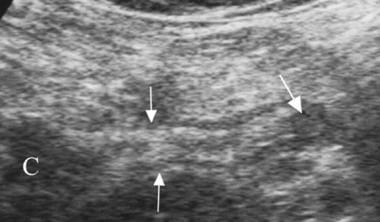 Perforated appendix; longitudinal ultrasonogram. A