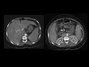 Contrast-enhanced axial CT depicts cavernous trans