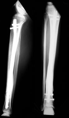 Osteomyelitis, chronic. A 20-year-old patient unde