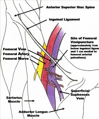 femoral central venous access technique: femoral vein cannulation, Muscles