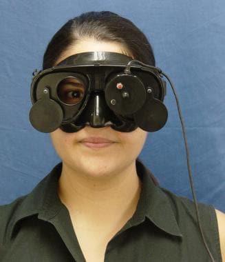 Binocular camera recording for videonystagmography