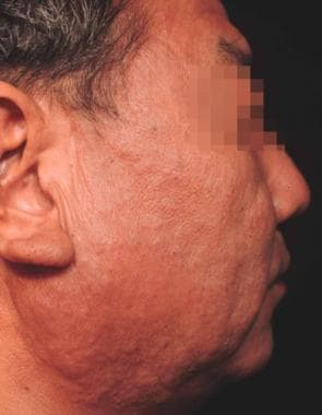 A 51-year-old Japanese man without a concomitant H