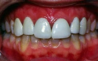 Porcelain laminate veneers for the treatment of te