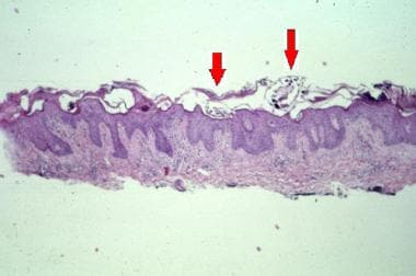 In crusted scabies, sections show multiple mites (