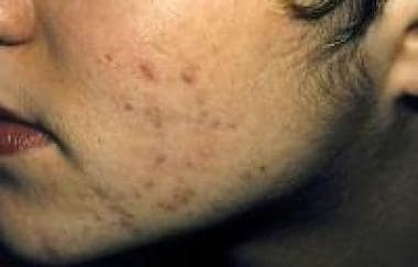 The photograph depicts hirsutism in a young woman