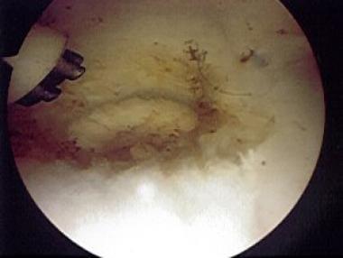 Palmer class 1A tear of triangular fibrocartilage